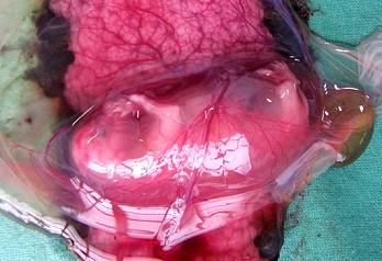Gürtelplazenta